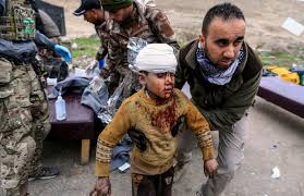Mosul-RefugeesBloodyKidBandageHead
