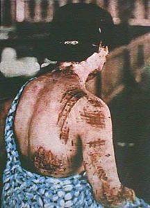 Hiroshima_burn_marks